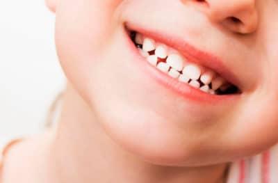 De belles dents bien blanches
