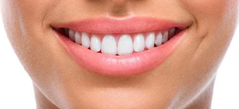 Sourire avec dents d'adulte