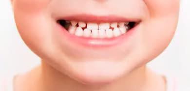 Sourire d'enfant avec ses dents de lait